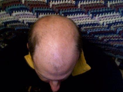 La alopecia afecta a más del 50% de los hombres y casi al 50% de las mujeres mayores de 50 años