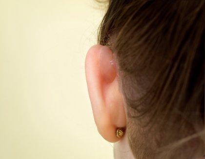 Unas prótesis para corregir las orejas despegadas, finalistas del Premio Emprendedor XXI de La Caixa y Enisa