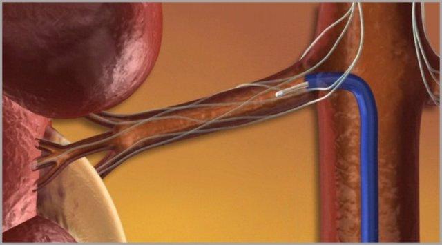 Catéter En Los Riñones Contra La Hipertensión