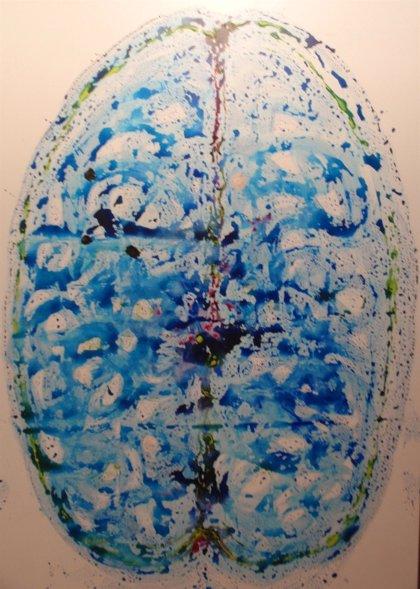 Relacionan el nivel de azúcar en sangre con la contracción del cerebro