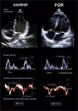 Radiografía. A La Izquierda, Corazón Bebé Normal Alargado. A La Derecha, Ensanch