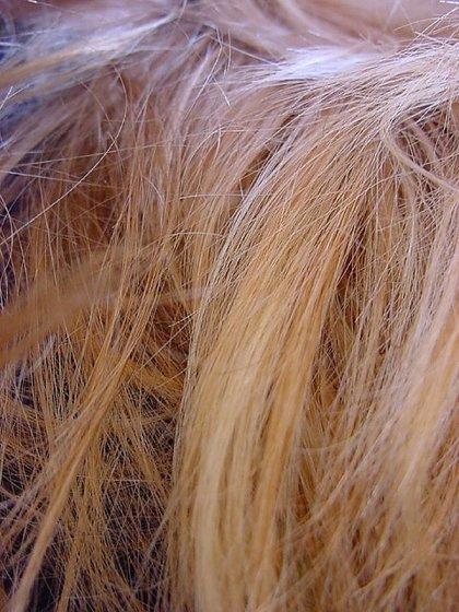 Hasta al 35 por ciento de la población se le puede caer el pelo por causas patológicas
