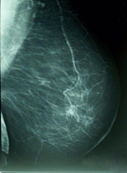 Un virus-vacuna muestra potencial para el tratamiento del cáncer de mama triple negativo