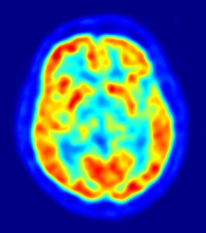 Crean un mapa universal de la visión en el cerebro humano