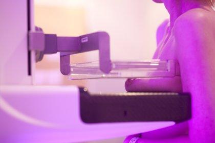 Una unidad móvil de mamografías del SES atenderá a 1.508 mujeres de zonas rurales en noviembre