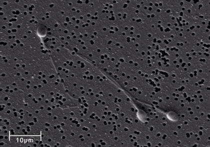 Descubiertas variaciones epigenéticas en los espermatozoides relacionadas con la infertilidad