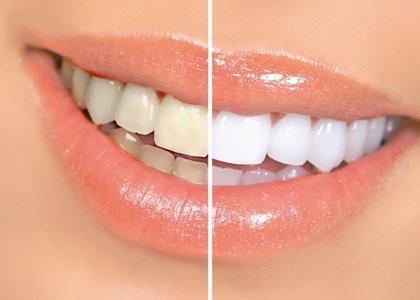 Expertos defienden que el blanqueamiento dental es seguro y eficaz para tratar la decoloraciones