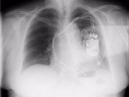 Utilizan por primera vez en España una nueva técnica para resincronización cardíaca