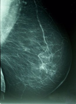 Cáncer De Mama, Densidad Mamográfica