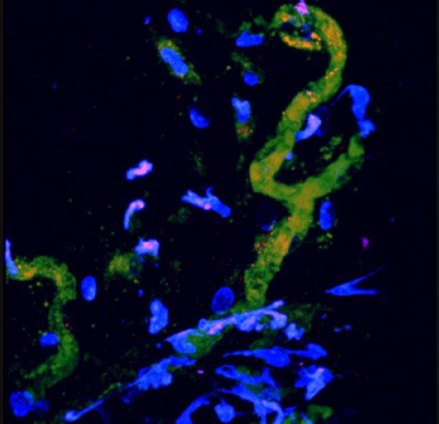 En amarillo, vasos sanguíneos de ratones regenerados con células madre humanas