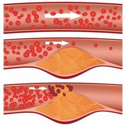 Niveles de colesterol en la sangre