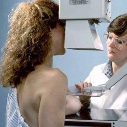 mamografía