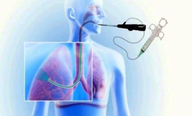 Inyección de espuma líquida en los pulmones para tratar el enfisema