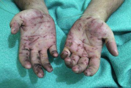 Mujer pierde sus dos manos luego de que su expareja la atacara con un machete