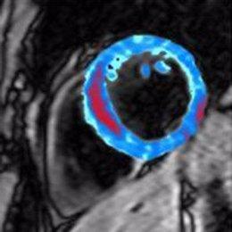 Logran las primeras imágenes de una hemorragia dentro del corazón tras un infart