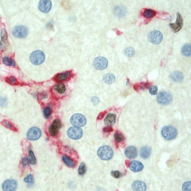 Daño del hígado durante la hepatitis