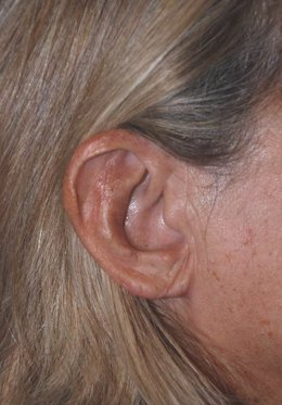 Las mujeres mayores demandan cada vez más intervenirse los lóbulos de la oreja