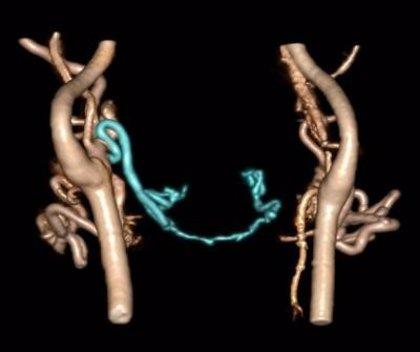 EEUU.- Los vasos sanguíneos se reorganizan después de la cirugía de trasplante de cara