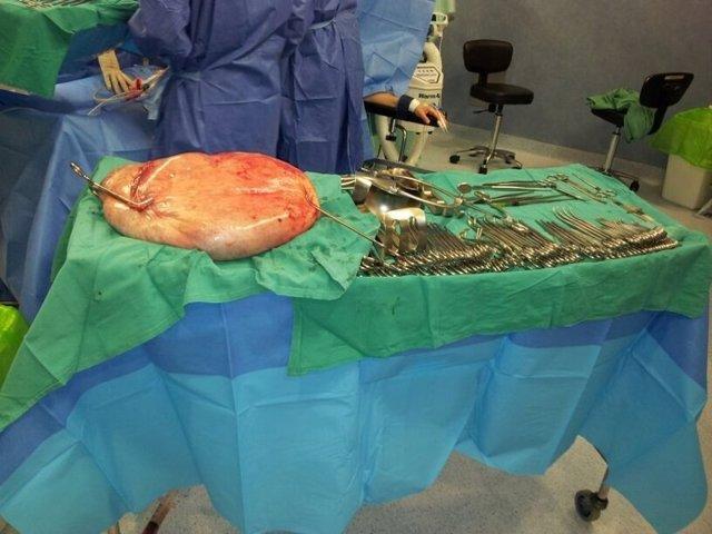 El tumor que se le extirpó a la paciente en Torrevieja