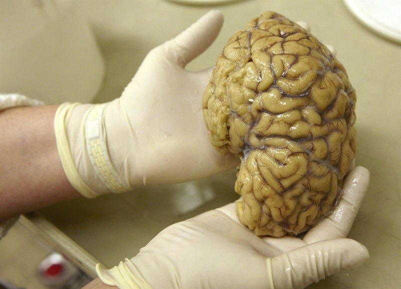 Robaba cerebros de enfermos mentales y los vendía por internet