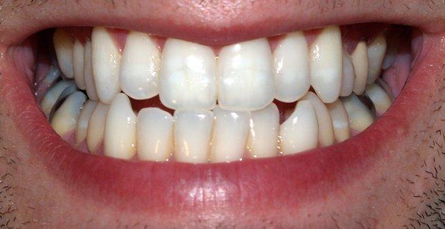 dientes, boca, sonrisa, dentadura
