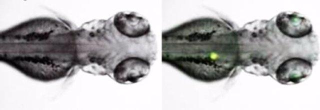 CSIC páncreas