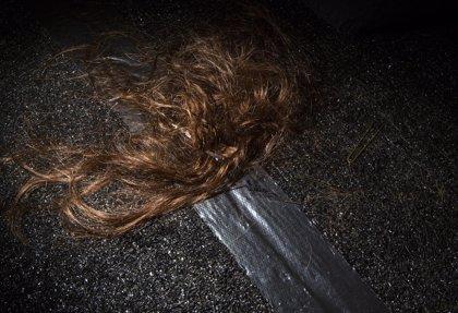 Encuentran medio kilo de pelo en el estómago de una niña de 12 años