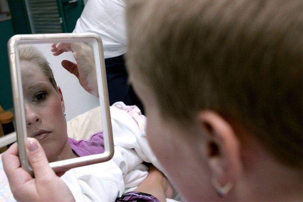 El 10 15% de los pacientes de cáncer TRATADOS quimio  radio no recuperan cabello