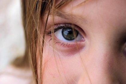 Los hábitos que perjudican al ojo