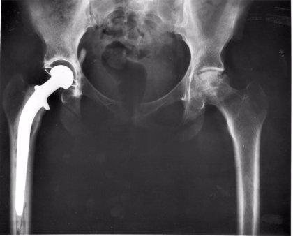 Los pacientes con prótesis de cadera o rodilla pueden seguir mejorando tras la rehabilitación