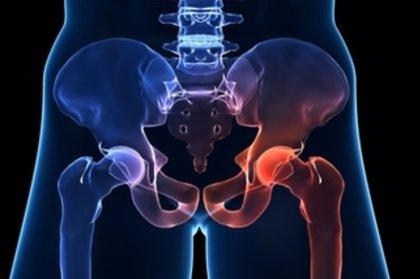 Aprobado un ensayo clínico europeo para el tratamiento de necrosis avascular con células madre
