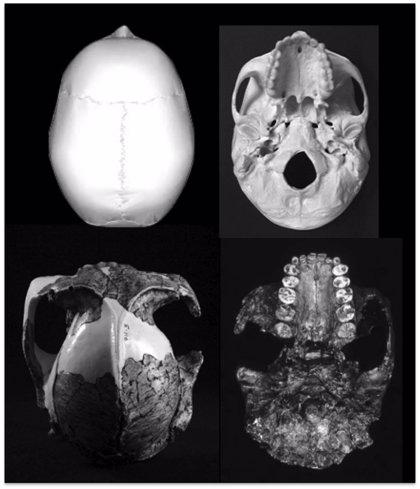 El 'homo' es el único primate cuyos dientes han decrecido conforme ha aumentado el del cerebro