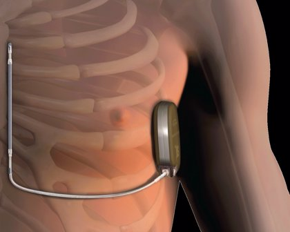HM Hospitales adquiere el desfibrilador automático implantable subcutáneo de Boston Scientific