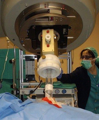 Una nueva técnica evita en pacientes mayores la radioterapia externa tras la cirugía en cáncer de mama