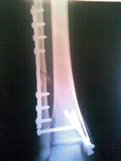 Desarrollan tornillos de seda para el tratamiento de las fracturas óseas