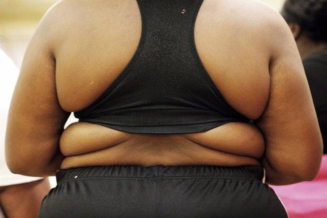 Persona con sobrepeso. Obesidad