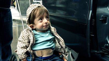 """Lucas, el """"niño de cristal"""", protagonista de un documental"""