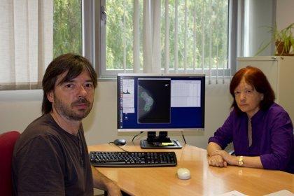 Desarrollan un nuevo 'software' que ayuda a determinar el riesgo de cáncer de mama