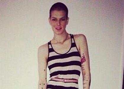 Bimba, la sobrina de Miguel Bosé, se recupera de su operación de cáncer de mama