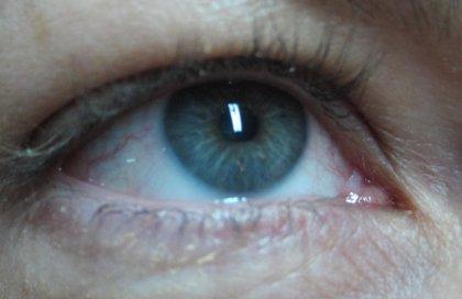 Científicos del CSIC desarrollan un nuevo biomaterial para implantar en el ojo que puede frenar la DMAE