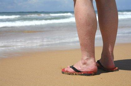 Consejos contra el síndrome de piernas cansadas