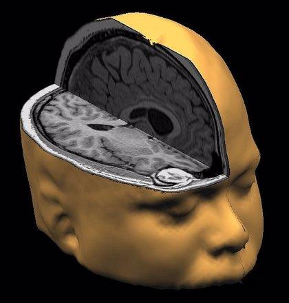 Relacionan el maltrato infantil con cambios en la materia gris del cerebro