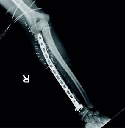 El Hospital General reconstruye el brazo de un niño con el hueso peroné de su pierna