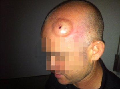 Detenido un vendedor ambulante en Peñíscola acusado de agredir a dos policías locales