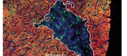 Descrito el primer caso de transmisión de hepatitis C resistente a los fármacos aprobados
