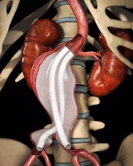 Endoprótesis aórtica