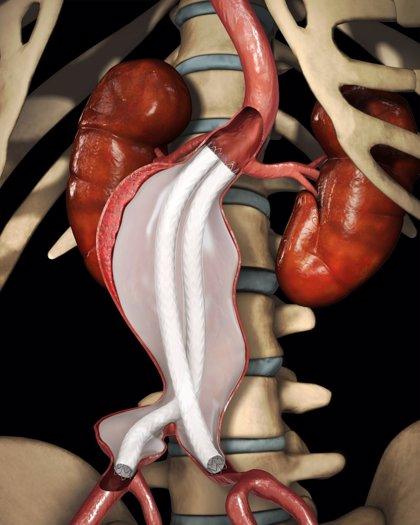 El Trueta de Girona implanta dos endroprótesis de última generación para tratar aneurismas de aorta