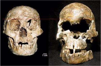 Los restos óseos del humano conocido como 'El Hobbit' muestran características de Síndrome de Down
