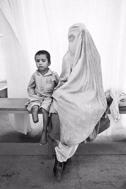 Niño mutilado y madre con burka.  Afganistán. Agosto 1996.