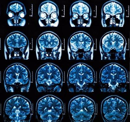 Relacionan el uso benzodiazepinas con el Alzheimer
